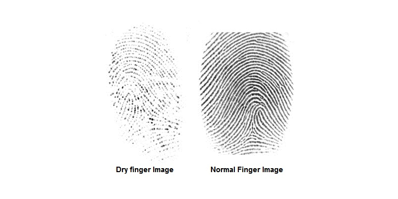 dry finger compared with normal finger